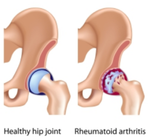 RF Arthritis Test